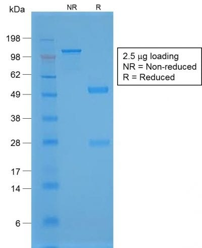 SDS-PAGE Analysis Purified TTF-1 Rabbit Recombinant Monoclonal Antibody (NX2.1/1855R). Confirmation of Purity and Integrity of Antibody.