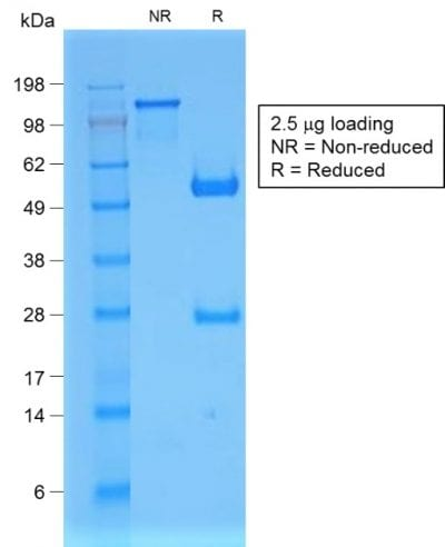 SDS-PAGE Analysis of Purified Beta-2-Microglobulin Rabbit Recombinant Monoclonal Antibody (B2M/1857R). Confirmation of Purity and Integrity of Antibody.
