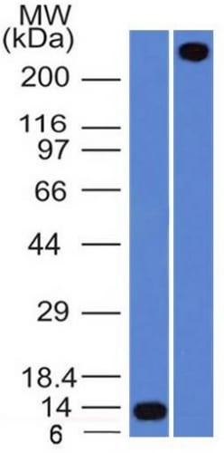 Western Blot Analysis A) Recombinant Protein (B) human lung lysate Using Rabbit Recombinant Monoclonal Antibody (VWF/1859R).