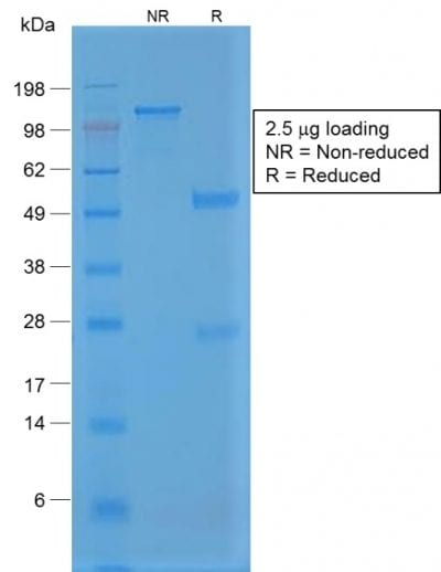 SDS-PAGE Analysis Purified Rabbit Recombinant Monoclonal Antibody (VWF/1859R). Confirmation of Purity and Integrity of Antibody.