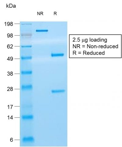 SDS-PAGE Analysis Purified CD8 Mouse Recombinant Monoclonal Antibody (rC8/468).Confirmation of Purity and Integrity of Antibody.
