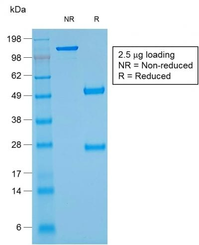 SDS-PAGE Analysis Purified Glycophorin A Mouse Recombinant Monoclonal Ab (rGYPA/280). Confirmation of Purity and Integrity of Antibody.