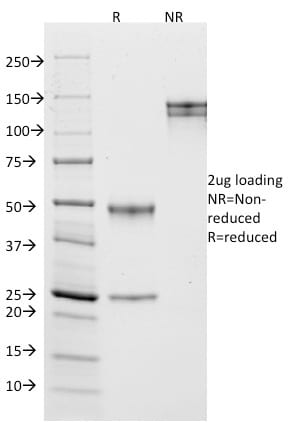 SDS –PAGE Analysis  Purified CD10 Mouse Monoclonal Antibody (MME/1870).Confirmation of Purity and Integrity
