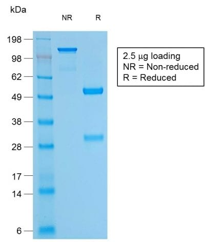 SDS-PAGE Analysis Purified Bcl-2 Rabbit Recombinant Monoclonal Antibody (BCL2/1878R). Confirmation of Purity and Integrity of Antibody.