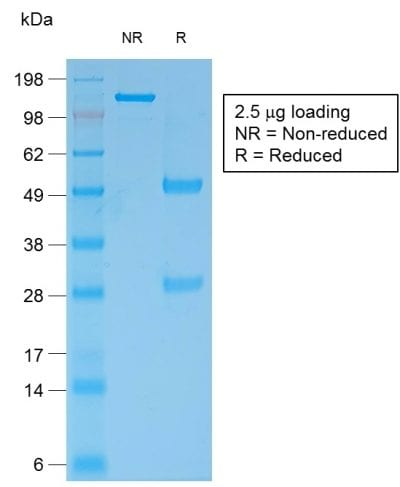 SDS-PAGE Analysis Purified Bcl-2 Mouse Recombinant Monoclonal Antibody (rBCL2/796). Confirmation of Purity and Integrity of Antibody.