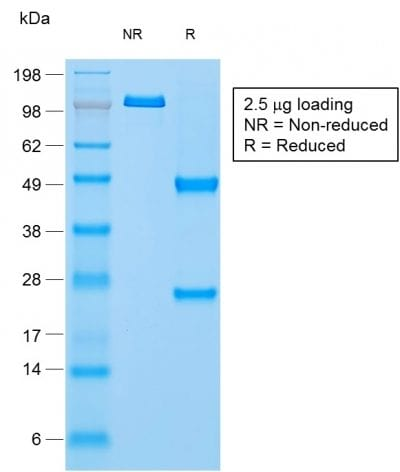 SDS-PAGE Analysis PurifiedNapsinAMouse Monoclonal Antibody (rNAPSA/1239). Confirmation of Purity and Integrity of Antibody.