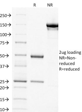 SDS-PAGE Analysis Purified Thymidylate Synthase Mouse Monoclonal Antibody (TYMS/1884). Confirmation of Purity and Integrity of Antibody.