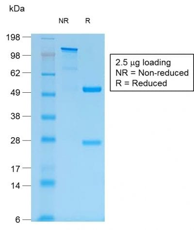 SDS-PAGE Analysis of Purified MUC1 Rabbit Recombinant Monoclonal Antibody (MUC1/1887R). Confirmation of Purity and Integrity of Antibody.
