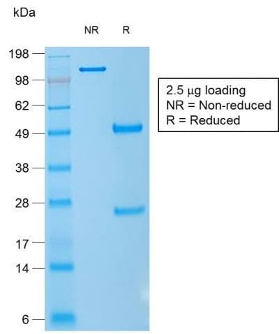 SDS-PAGE Analysis Purified CD1a Mouse Recombinant Monoclonal Antibody (rC1A/711). Confirmation of Purity and Integrity of Antibody.