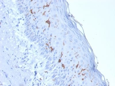 Formalin-fixed paraffin-embedded human Skin Stained with CD1a Mouse Recombinant Monoclonal Antibody (rC1A/711).