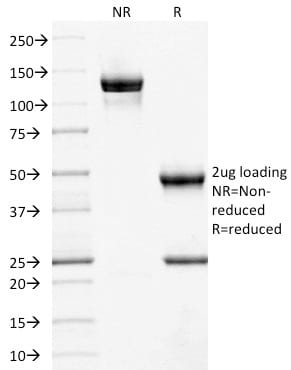 SDS-PAGE Analysis Purified CD10 Mouse Monoclonal Antibody (MME/1892).Confirmation of Purity and Integrity of Antibody.