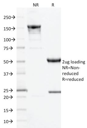 SDS-PAGE Analysis Purified CD10 Mouse Monoclonal Antibody (MME/1893).Confirmation of Purity and Integrity of Antibody.