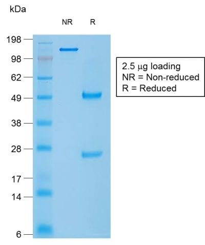 SDS-PAGE Analysis Purified Caldesmon Mouse Recombinant Monoclonal Antibody (rCALD1/820). Confirmation of Purity and Integrity of Antibody.