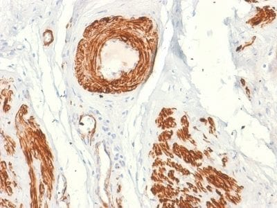Formalin-fixed paraffin-embedded human Leiomyosarcoma stained with Caldesmon Mouse Recombinant Monoclonal Antibody (rCALD1/820).