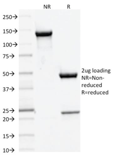 SDS-PAGE Analysis Purified DNMT3A Mouse Moncolonal Antibody (PCRP-DNMT3A-1E2).Confirmation of Purity and Integrity of Antibody.