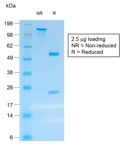 SDS-PAGE Analysis Purified Chromogranin A Mouse Recombinant Monoclonal Ab(rCHGA/413).Confirmation of Purity and Integrity of Antibody.