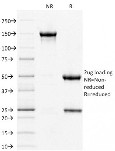 SDS-PAGE Analysis Purified STAT3 Mouse Monoclonal Antibody (PCRP-STAT3-2F12).Confirmation of Purity and Integrity of Antibody.