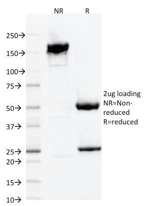 SDS-PAGE Analysis Purified AIF1 / Iba1 Mouse Monoclonal Antibody (AIF1/1909).Confirmation of Purity and Integrity of Antibody.
