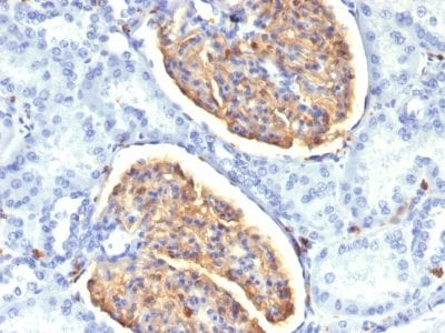 Formalin-fixed paraffin-embedded Human Kidney stained with AIF1 / Iba1 Mouse Monoclonal Antibody (AIF1/1909).