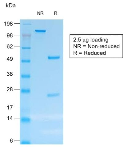 SDS-PAGE Analysis Purified CD30 Mouse Recombinant Monoclonal Antibody (rCD30/412). Confirmation of Purity and Integrity of Antibody.