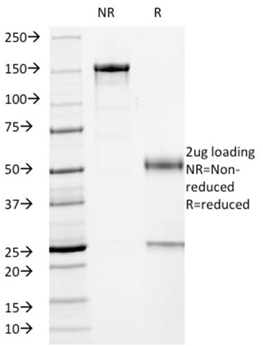 SDS-PAGE Analysis Purified p53 Mouse Monoclonal Antibody (PCRP-TP53-2A10).Confirmation of Purity and Integrity of Antibody.