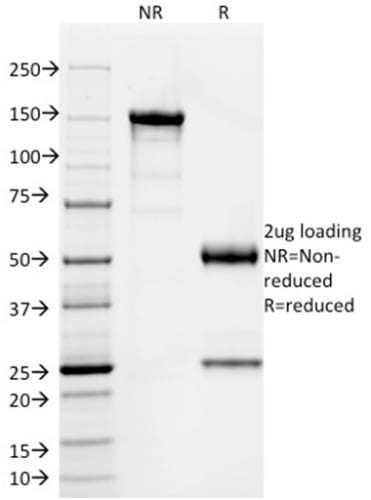 SDS-PAGE Analysis Purified SOX9 Mouse Monoclonal Antibody (PCRP-SOX9-1A2).Confirmation of Purity and Integrity of Antibody.
