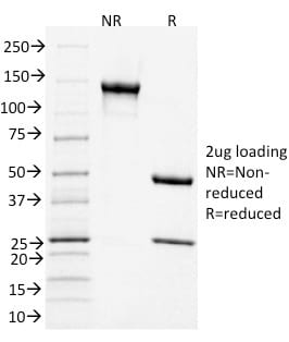 SDS-PAGE Analysis Purified CD3e Mouse Monoclonal Antibody (C3e/1931).Confirmation of Purity and Integrity of Antibody.