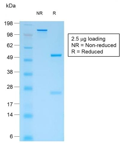 SDS-PAGE Analysis Purified CD44v4 Mouse Recombinant Monoclonal Antibody (rCD44v4/1219). Confirmation of Purity and Integrity of Antibody.