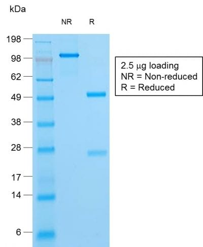 SDS-PAGE Analysis Purified HSV1 Mouse Recombinant Monoclonal Antibody (HSV1/1934). Confirmation of Purity and Integrity of Antibody.