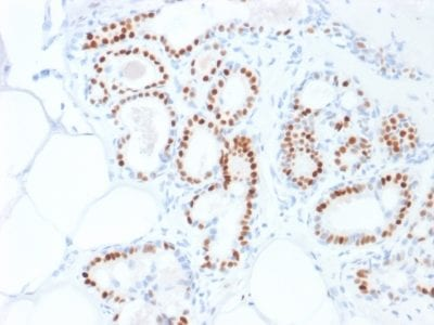 Formalin-fixed paraffin-embedded human Breast Carcinoma stained with Estrogen Receptor alpha Mouse Monoclonal Antibody (ESR1/1935).