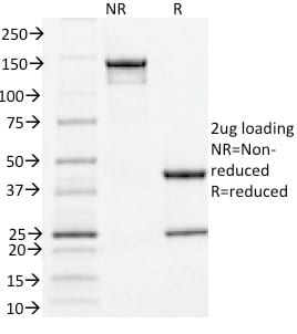 SDS-PAGE Analysis Purified Estrogen Receptor alpha Mouse Monoclonal Antibody (ESR1/1935).Confirmation of Purity and Integrity of Antibody.