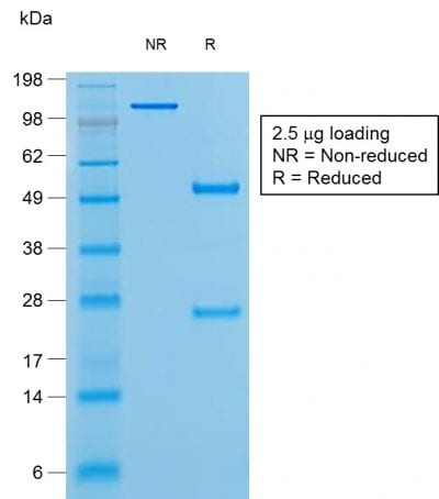 SDS-PAGE Analysis Purified BCL-6 Mouse Recombinant Monoclonal Antibody (rBCL6/1527). Confirmation of Purity and Integrity of Antibody.