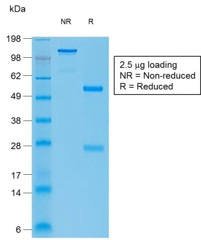 SDS-PAGE Analysis Purified bcl-6 Rabbit Recombinant Monoclonal Antibody (BCL6/1951R).Confirmation of Purity and Integrity of Antibody.