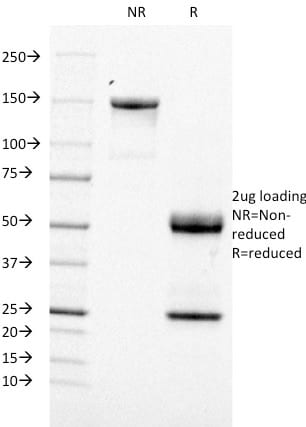 SDS-PAGE Analysis Purified CD21 / CR2 Mouse Monoclonal Antibody (CR2/1953).Confirmation of Purity and Integrity of Antibody.