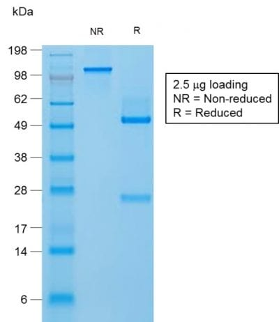 SDS-PAGE Analysis Purified Filaggrin Rabbit Recombinant Monoclonal Antibody (FLG/1957R). Confirmation of Purity and Integrity of Antibody.