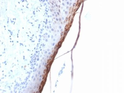 Formalin-fixed paraffin-embedded human Skin stained with Filaggrin Rabbit Recombinant Monoclonal Antibody (FLG/1957R).