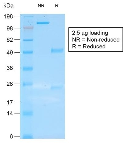 SDS-PAGE Analysis Purified CK19 Mouse Recombinant Monoclonal Antibody (rKRT19/800). Confirmation of Purity and Integrity of Antibody.