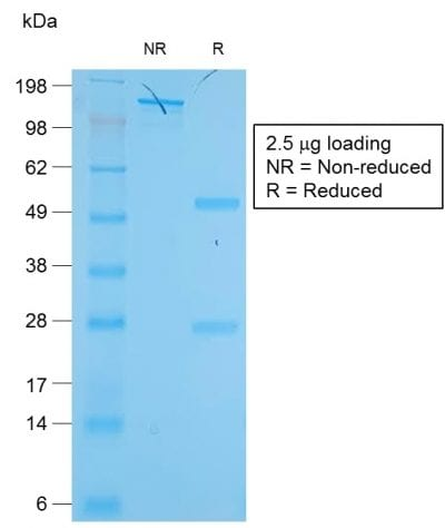 SDS-PAGE Analysis of Purified Cytokeratin 19 Rabbit Recombinant Monoclonal Antibody (KRT19/1959R). Confirmation of Purity and Integrity of Antibody.