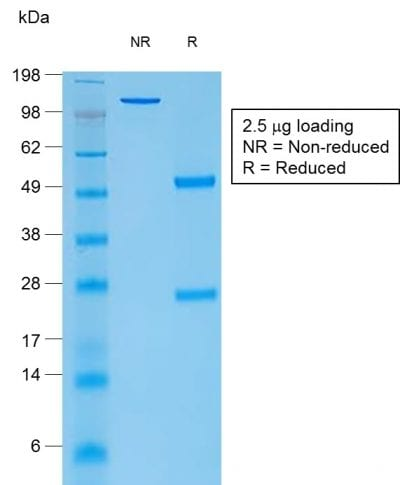 SDS-PAGE Analysis Purified Thyroglobulin Mouse Recombinant Monoclonal Antibody (rTGB24). Confirmation of Purity and Integrity of Antibody.