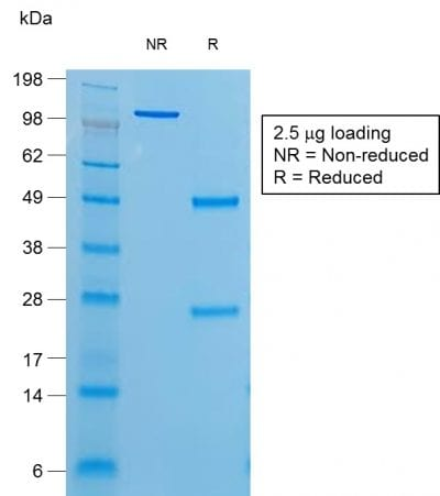 SDS-PAGE Analysis of Purified Thyroglobulin Mouse Recombinant Monoclonal Antibody (r6E1). Confirmation of Purity and Integrity of Antibody.