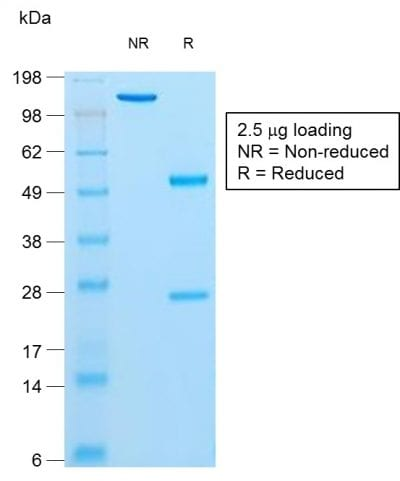 SDS-PAGE Analysis Purified Insulin Mouse Recombinant Monoclonal Antibody (rIRDN/805). Confirmation of Purity and Integrity of Antibody.
