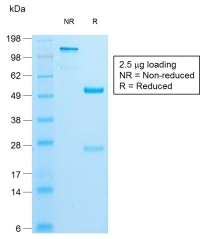 SDS-PAGE Analysis of Purified Insulin Rabbit Recombinant Monoclonal Antibody (IRDN/1980R). Confirmation of Purity and Integrity of Antibody.