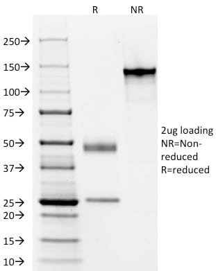 SDS-PAGE Analysis Purified Elastin Mouse Monoclonal Antibody (ELN/1981) Confirmation of Purity and Integrity of Antibody.