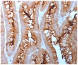Formalin-fixed paraffin-embedded Human Melanoma stained with CEA Rabbit Recombinant Monoclonal Antibody (C66/1983R).