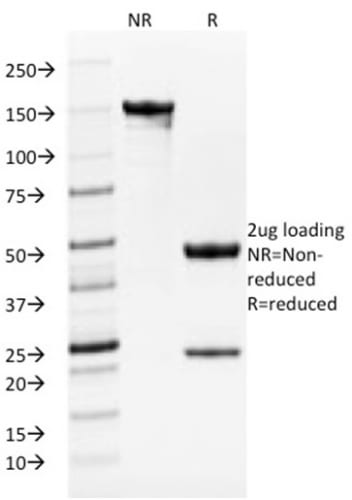 SDS-PAGE Analysis Purified TYRP1 Mouse Monoclonal Antibody (TYRP1/1986). Confirmation of Purity and Integrity of Antibody.