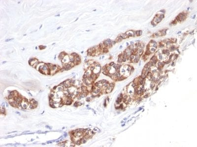 Formalin-fixed paraffin-embedded human Breast Carcinoma stained with Cytokeratin 18 Monoclonal Antibody (SPM510).