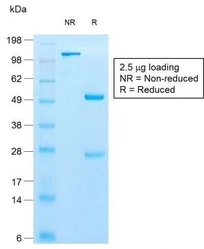 SDS-PAGE Analysis of Purified Cytokeratin 10 Rabbit Recombinant Monoclonal Antibody (KRT10/1990R). Confirmation of Purity and Integrity of Antibody.