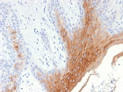 Formalin-fixed paraffin-embedded human Skin stained with Cytokeratin 10 Rabbit Recombinant Monoclonal Antibody (KRT10/1990R).