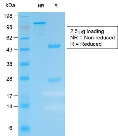 SDS-PAGE Analysis Purified Kappa Lt. Chain Rabbit Recombinant Monoclonal (IGKC /1999R). Confirmation of Purity and Integrity of Antibody.
