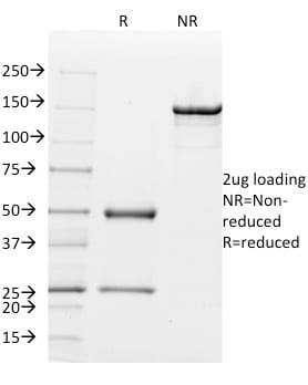 SDS-PAGE Analysis Purified Mouse Monoclonal Antibody (MGB1/2000) to Mammaglobin. Confirmation of Purity and Integrity of Antibody.